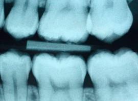 odontologia-conservadora-1